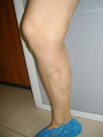 2 седмици след лазерна аблация на варикоза