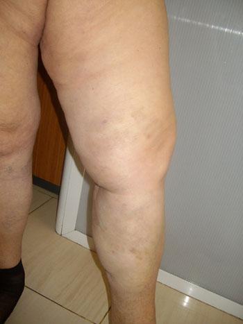 2 седмици след лазерна аблация на варикозна болест