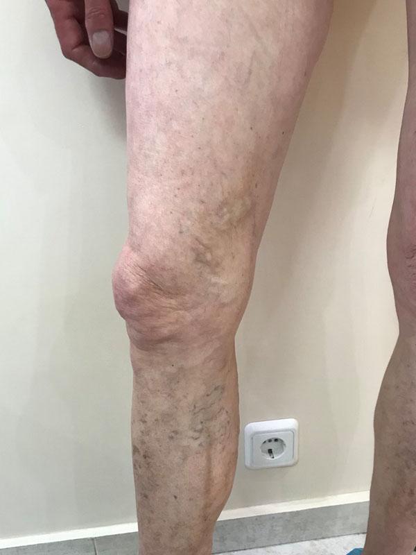 1 година след лечение